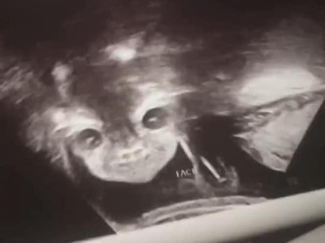 imagenes aterradoras ultrasonido