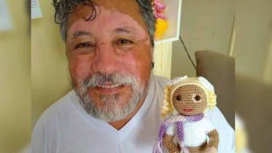 Photo of Hace muñecas con vitiligo para ayudar autoestima de niños