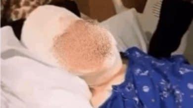 Photo of Niño de masacre LeBarón le desfiguraron el rostro a balazos y sobrevivió