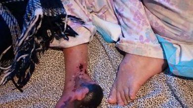 Photo of Silvia Arroyo no habla ni camina, sufrió embolia, la rechazan en hospitales