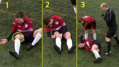Futbolista se disloca la rótula y se la arregla a golpes