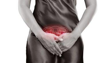 Photo of Repercusiones del ovario poliquístico