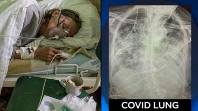 pulmones-quedan-danados-tras-padecer-covid-incluso-en-asintomaticos