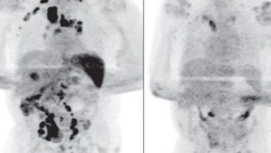 Paciente-se-cura-de-cáncer-tras-contagiarse-de-Covid-19-lo-investigan