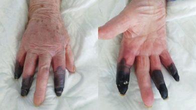 covid-19-le-provoca-gangrena-a-mujer-de-86-anos