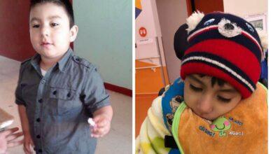 Dylan-Osmar-ya-fue-operado-recibira-tratamiento-mensual